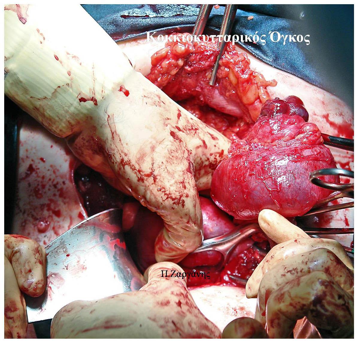 Κοκκιοκυτταρικος Όγκος